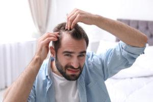 Trapianto capelli e calvizie
