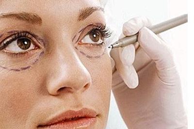 Rimuovere le borse sotto agli occhi con la blefaroplastica