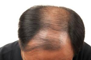 diradamento capelli 01