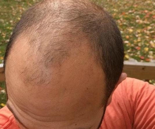Perdita di capelli dopo terapia di radiazione di una fotografia